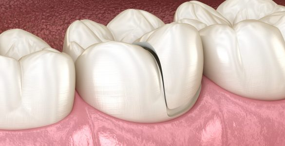 Onlay,Ceramic,Crown,Fixation,Over,Tooth.,Medically,Accurate,3d,Illustration