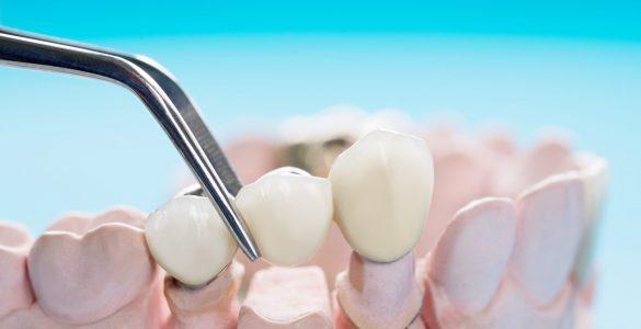 Closeup,/,Prosthodontics,Or,Prosthetic,/,Teeth,Crown,And,Bridge